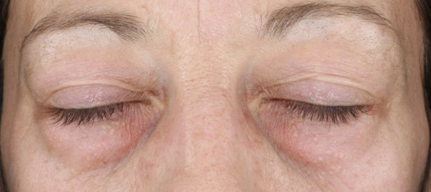 Reduction of Under-Eye Bags