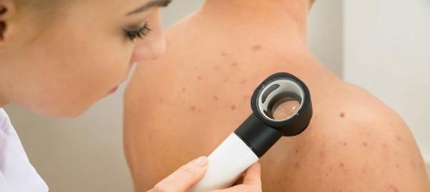 Minimize skin pores
